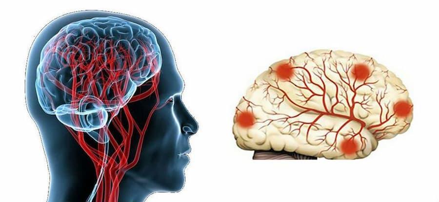 lechenie distsirkulyatornoj entsefalopatii3 3