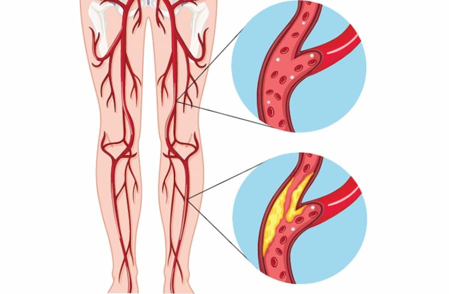 lechenie obliteriruyushhego ateroskleroza nizhnih konechnostej2 3